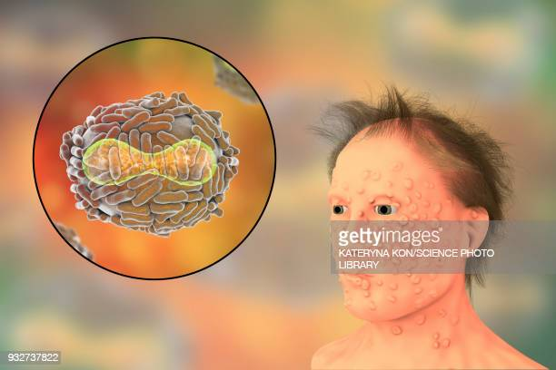 smallpox virus and disease, illustration - imagem a cores stock illustrations