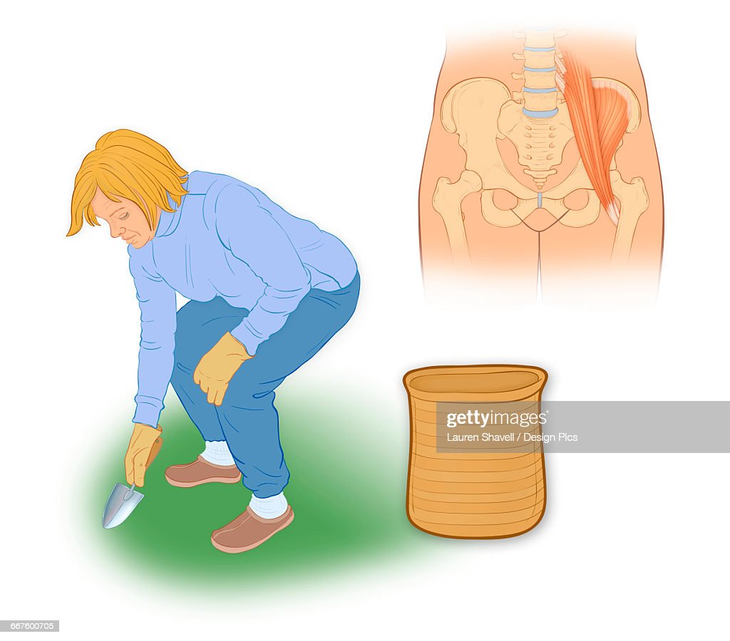 snapping hip syndrome is the result of the iliopsoas tendon subluxing over the greater trochanter or