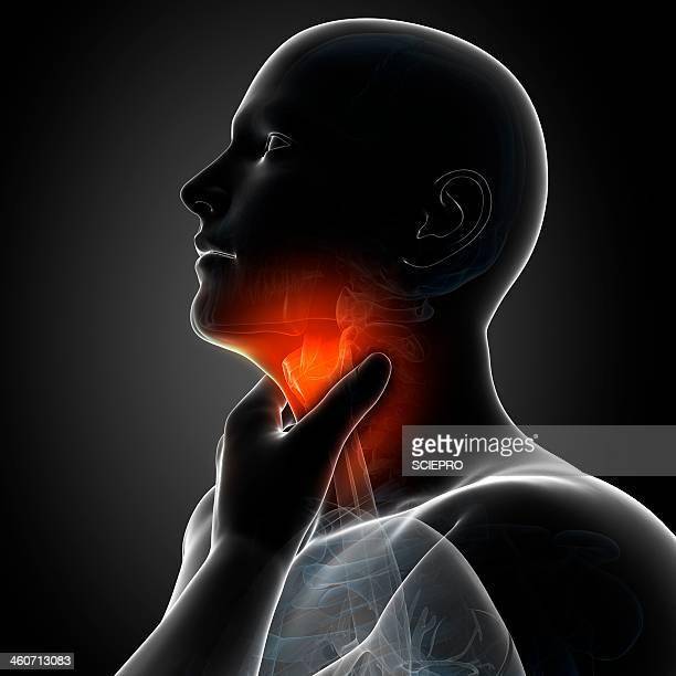 Sore throat, artwork