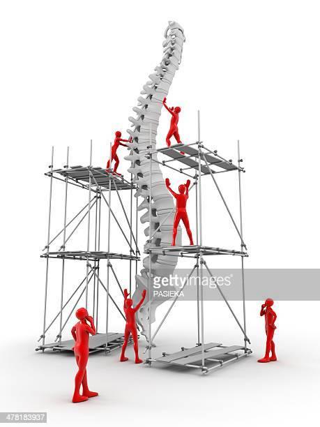 illustrations, cliparts, dessins animés et icônes de spine with workers, spine repair - mal de dos