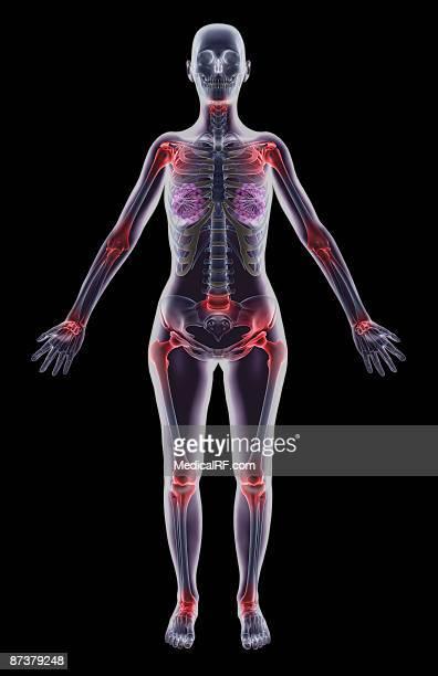illustrazioni stock, clip art, cartoni animati e icone di tendenza di spondylitis - images