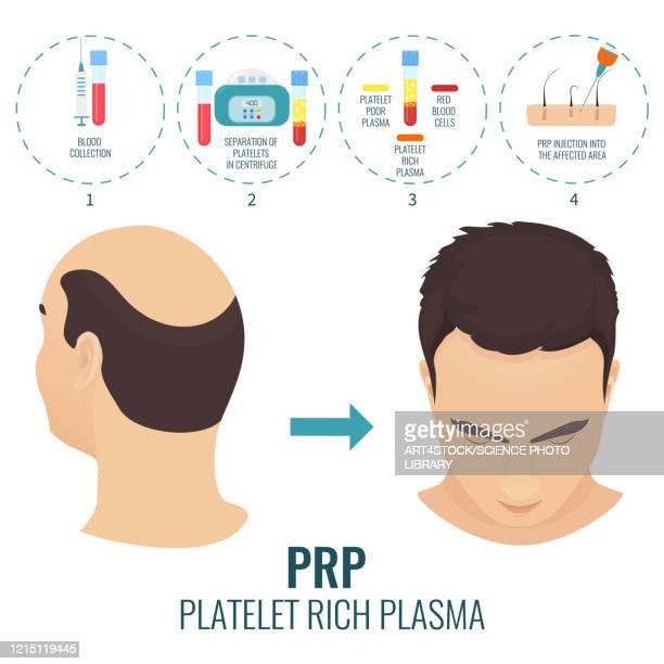 stages of prp procedure in men, illustration - anticipation stock illustrations