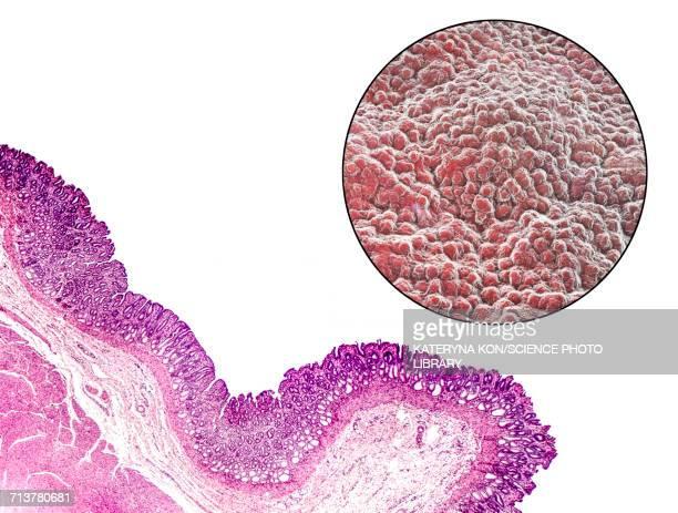 Stomach mucosa, light micrograph and illustration