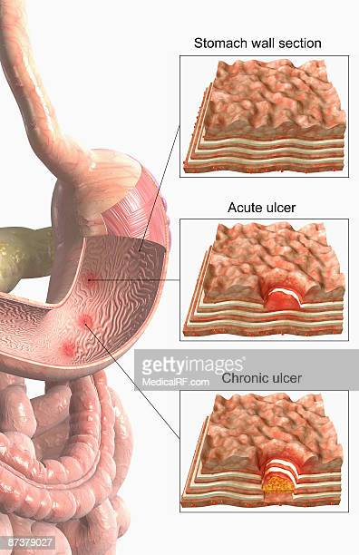 stomach ulcer - mucus stock illustrations, clip art, cartoons, & icons