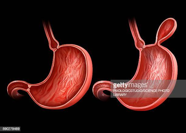 stockillustraties, clipart, cartoons en iconen met stomach with and without hernia - liesbreuk