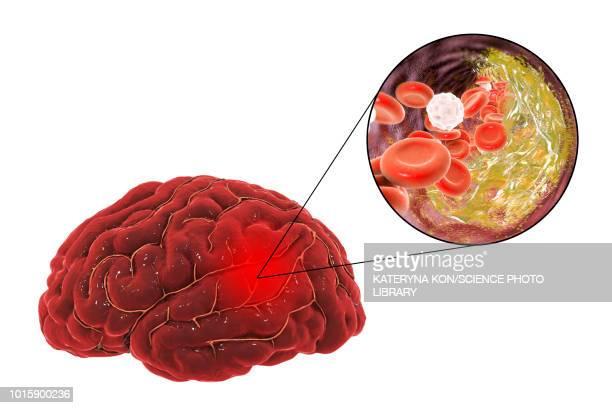 stroke due to atherosclerosis, illustration - sclerosis stock illustrations