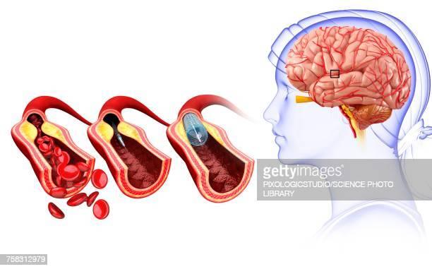 ilustrações de stock, clip art, desenhos animados e ícones de stroke treatment, illustration - sistema nervoso central