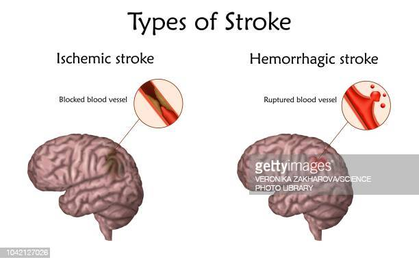 Stroke types, illustration