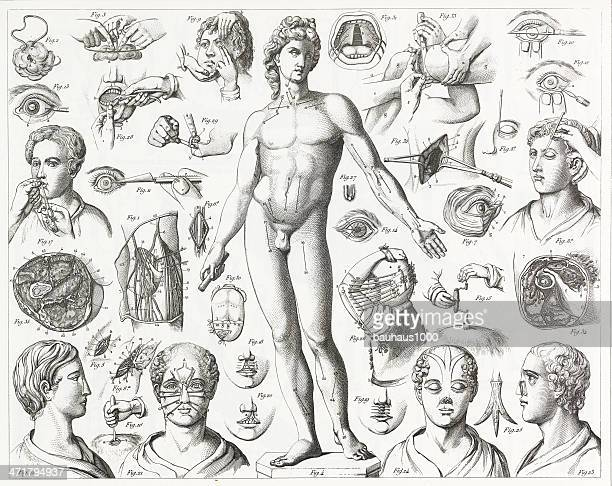 surgical operations engraving - human nose stock illustrations