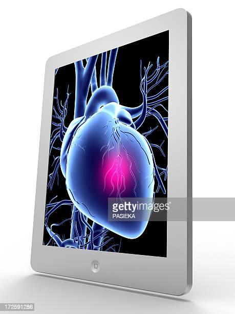 tablet computer, heart attack artwork - myocardium stock illustrations, clip art, cartoons, & icons