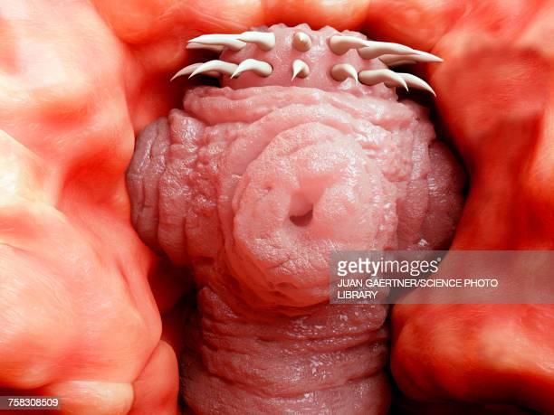 Tapeworm head attached to intestine, illustration