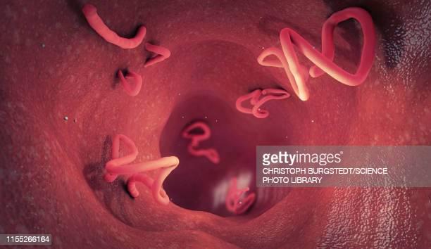 Tapeworm infestation in human intestine, illustration