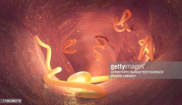 tapeworm infestation in human intestine, illustration - human intestine stock illustrations