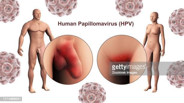 stockillustraties, clipart, cartoons en iconen met the human papillomavirus infection (hpv infection) in the male and female genitals. - cancer de piel