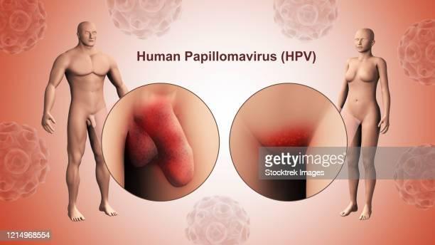 human papillomavirus in female)