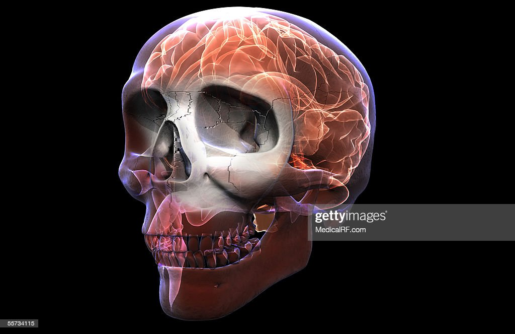 This Image Depicts A Three Quarter View Of An Xray Skull With An ...