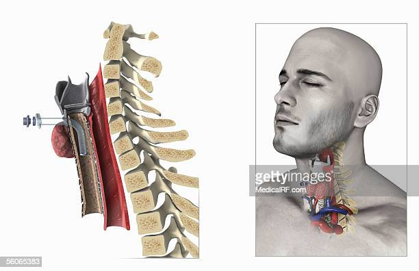 stockillustraties, clipart, cartoons en iconen met a three quarter lateral view of the tracheostomy procedure. - images