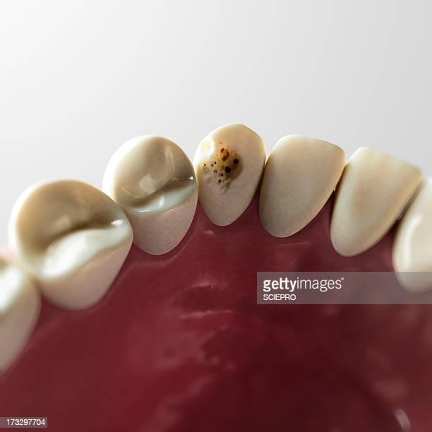 ilustraciones, imágenes clip art, dibujos animados e iconos de stock de tooth decay, artwork - dientes humanos