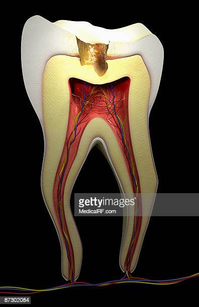 tooth decay - rotten com stock illustrations