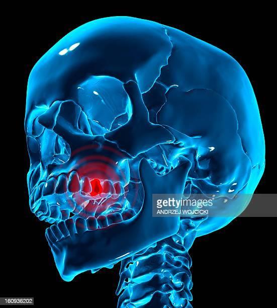 ilustraciones, imágenes clip art, dibujos animados e iconos de stock de toothache, conceptual artwork - dolordemuelas