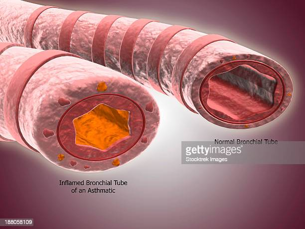 trachea cross-section showing comparison of normal and asthmatic bronchiole. - mucus stock illustrations, clip art, cartoons, & icons