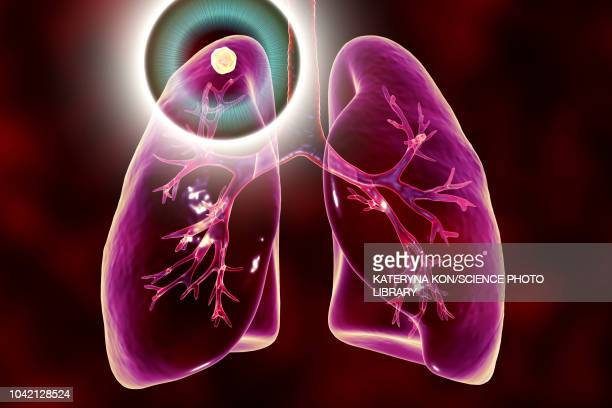 Treatment and prevention of tuberculosis, conceptual illustr