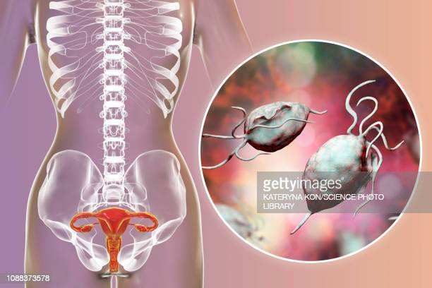 ilustraciones, imágenes clip art, dibujos animados e iconos de stock de trichomoniasis, illustration - trompas de falopio