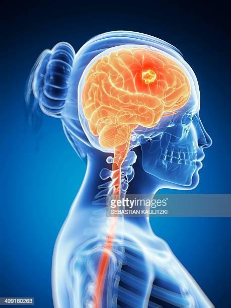 tumour in the brain, artwork - brain tumour stock illustrations