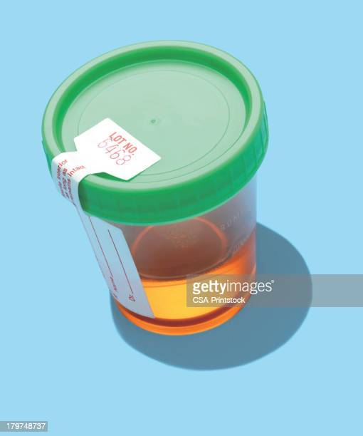 urine sample - urine stock illustrations