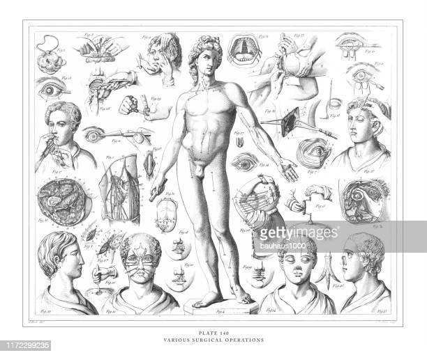 verschiedene medizinische operationen gravur antike illustration, veröffentlicht 1851 - menschliches körperteil stock-grafiken, -clipart, -cartoons und -symbole