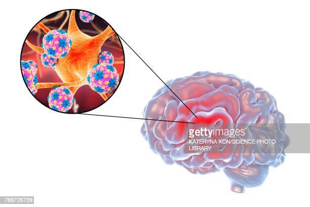 Viral encephalitis, illustration