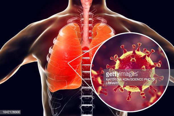 ilustraciones, imágenes clip art, dibujos animados e iconos de stock de mers virus infection of lungs, conceptual illustration - covid