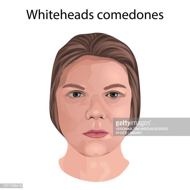 whitehead comedones, illustration - dermatology stock illustrations