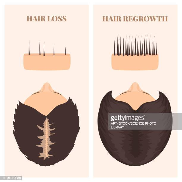 woman before and after hair transplantation, illustration - hair follicle stock illustrations