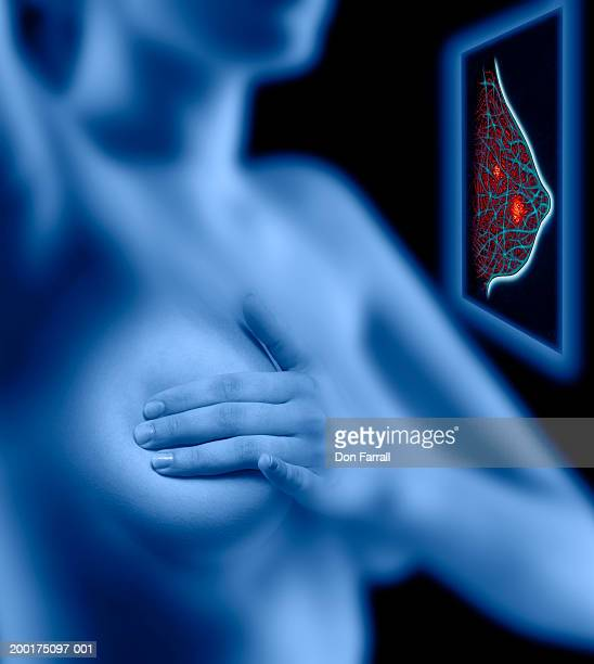 woman examining her breast, simulated breast scan (digital composite) - マモグラフィー点のイラスト素材/クリップアート素材/マンガ素材/アイコン素材