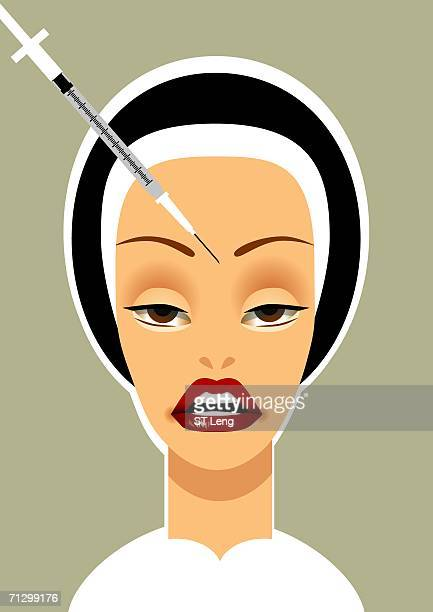 woman getting a neurotoxin injection on her forehead - collagen stock illustrations