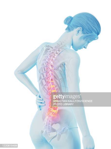 woman with a painful back, illustration - human back stock illustrations