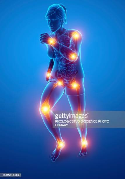 woman with joint pain, illustration - artistic product stock illustrations