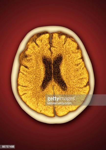 x-ray image of brain - レントゲン撮影装置点のイラスト素材/クリップアート素材/マンガ素材/アイコン素材