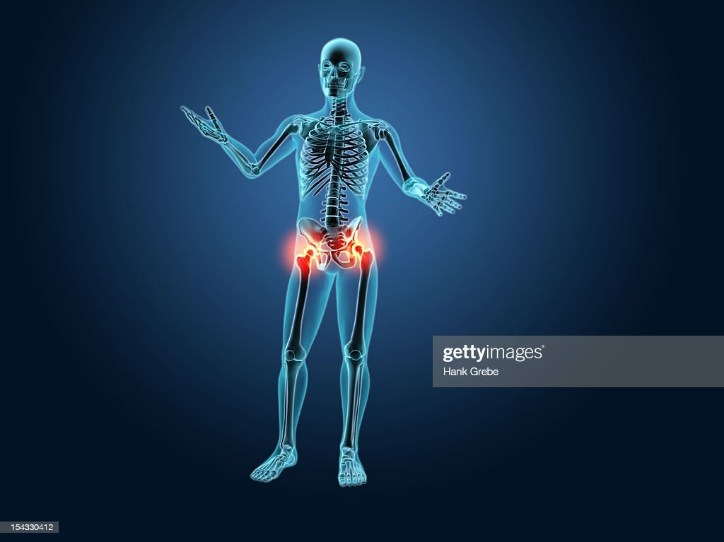 Xray View Of A Human Skeleton With Hip Joint Inflammation Stock ...