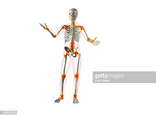 x-ray view of a human skeleton with joint inflammations - rheumatism stock illustrations