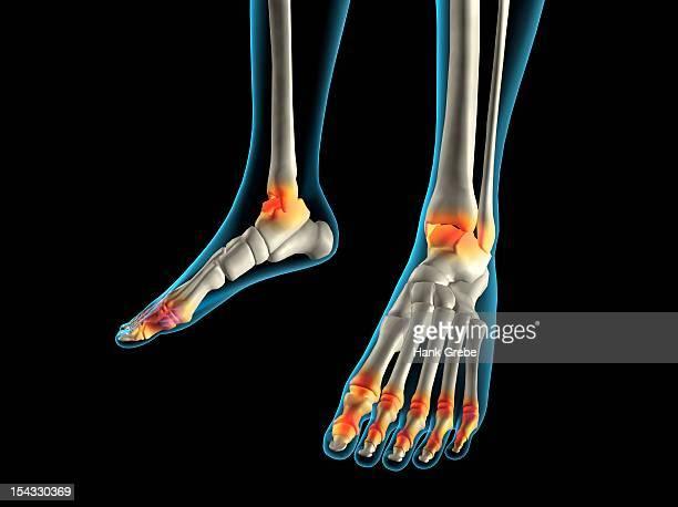 x-ray view of inflamed foot bones - カイロプラクター点のイラスト素材/クリップアート素材/マンガ素材/アイコン素材