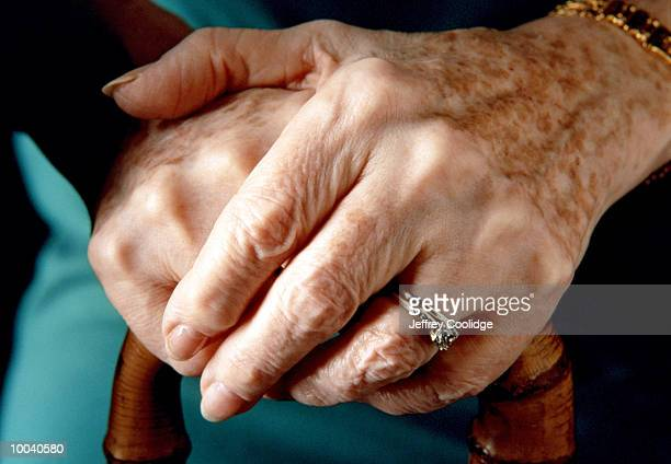 elderly woman's hands - lentigo stock pictures, royalty-free photos & images