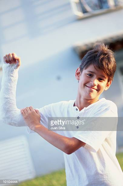 young boy with arm in cast - cast colors for broken bones stock pictures, royalty-free photos & images