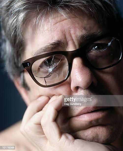 MAN WEARING BROKEN GLASSES, CLOSE-UP