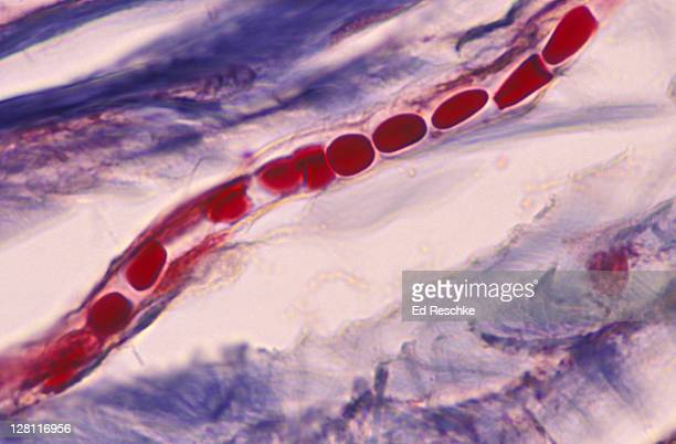 capillary with red blood cells in single file. shows endothelium. human scalp. 400x - capillary body part stock photos and pictures