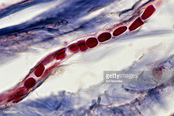 CAPILLARY WITH RED BLOOD CELLS IN SINGLE FILE. ENDOTHELIUM. HUMAN SCALP 400X