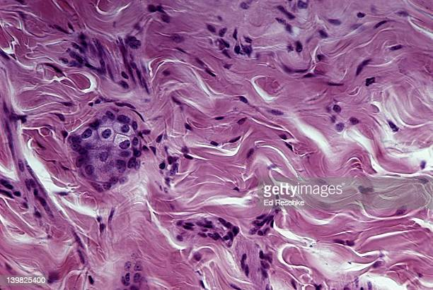 DENSE FIBROUS CONNECTIVE TISSUE (IRREGULAR); SHOWS IRREGULAR COLLAGENOUS FIBERS (PINK) AND FIBROBLAST NUCLEI (PURPLE); FROM THE DERMIS OF THE SKIN