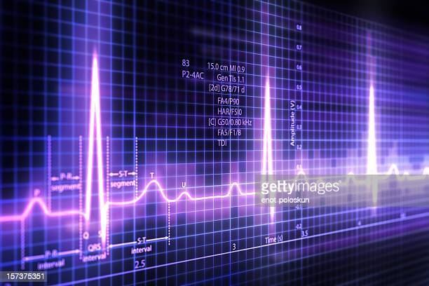 ecg - pulse trace stock pictures, royalty-free photos & images