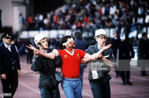 AN INJURED LIVERPOOL SOCCER FAN IS LED AWAY BY MEDICAL STAFF PRIOR TO THE 1985 EUROPEAN CUP FINAL AT THE HEYSEL STADIUM BELGIUM ITALIAN FANS WERE...